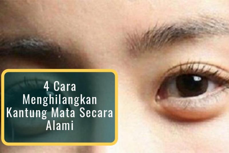 Cara Menghilangkan Kantung Mata