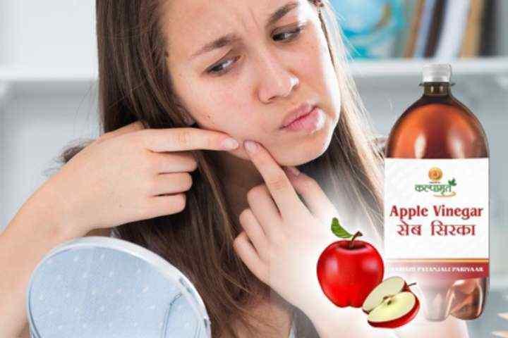 Cara Mudah Mengatasi Jerawat Dengan Cuka Apel